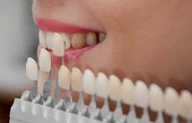 Faccette dentali a Trento