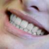 Sbiancamento dentale a Trento