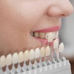 Faccette Dentali Trento
