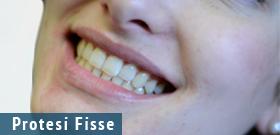 Protesi Dentali Fisse a Trento