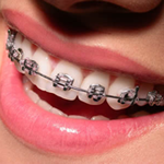 Ortodonzia a Trento