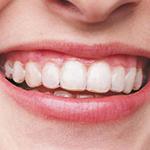 Invisalign: Ortodonzia invisibile
